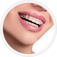 charles town orthodontist for braces