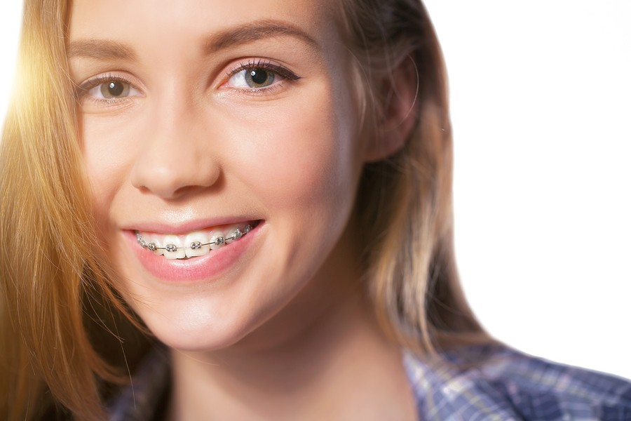 5-Star-Rated Orthodontist in Martinsburg, WV Offers Variety of Braces Options