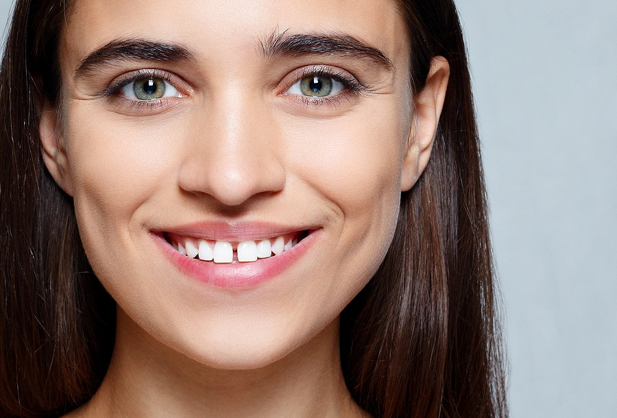 Orthodontist in Martinsburg, WV: Can Braces Fix Gaps?